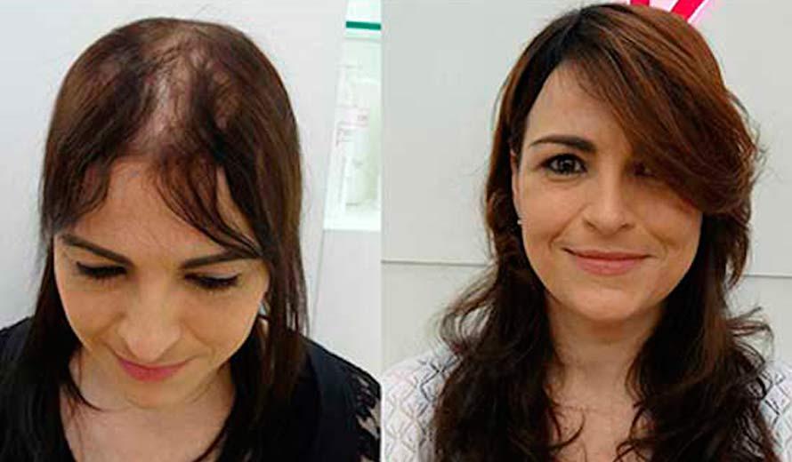 Замещение волос при алопеции облысении